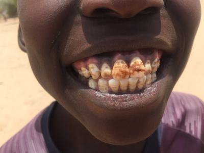 dientes-min